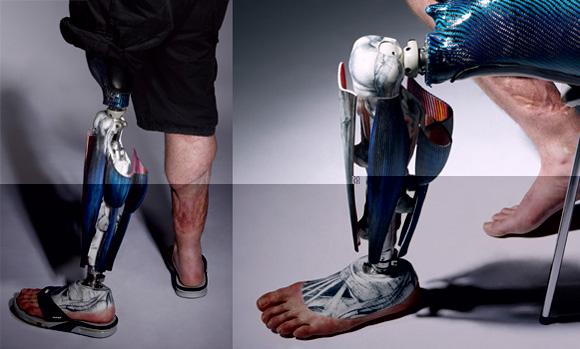 Технологичный протез