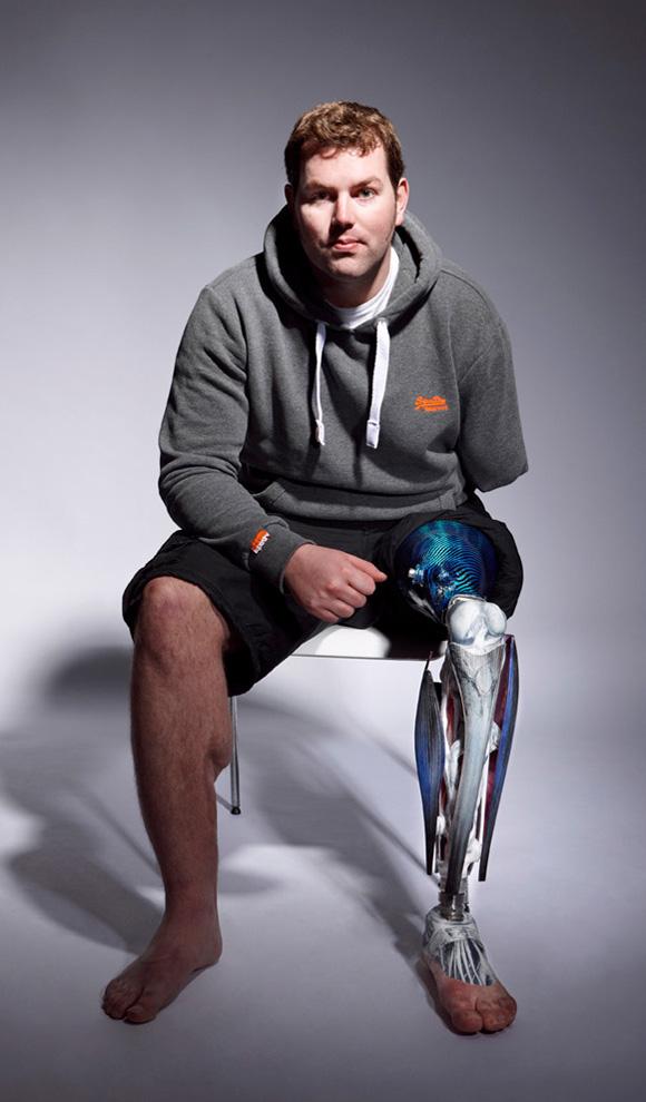 Мужчина с протезом